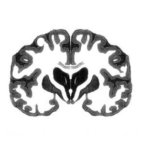 Neuroarchitectura